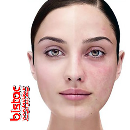 The need to use Face Wash-bistac-ir00